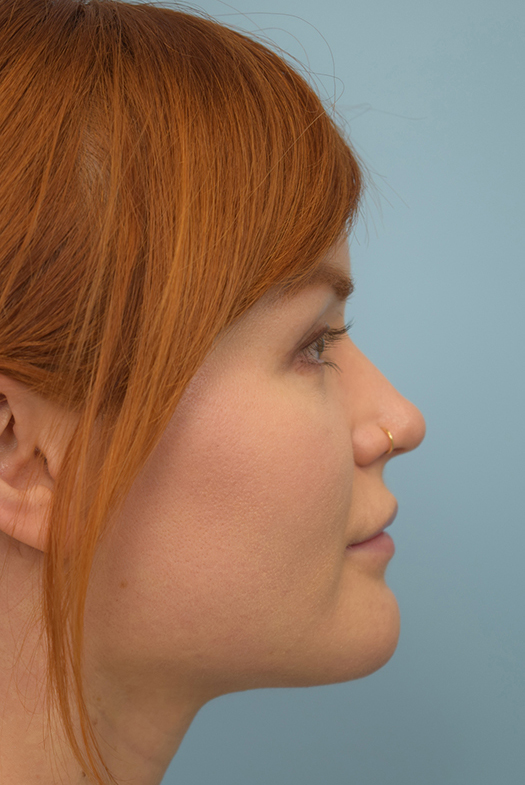 Buccal Fat Removal